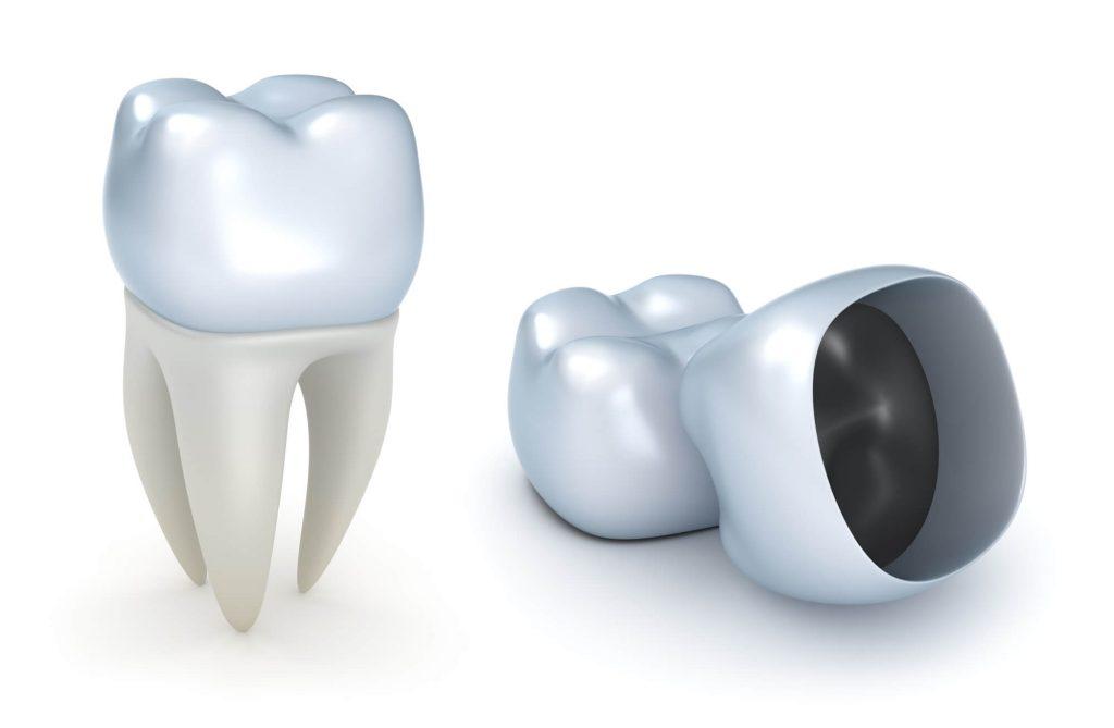 Naples Dentist crown vector
