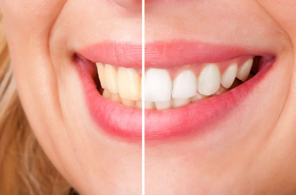 finding naples cosmetic dentistry