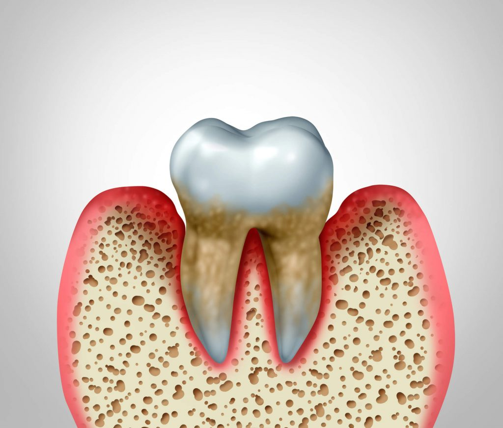 inflamed gum tissues surrounding a tooth