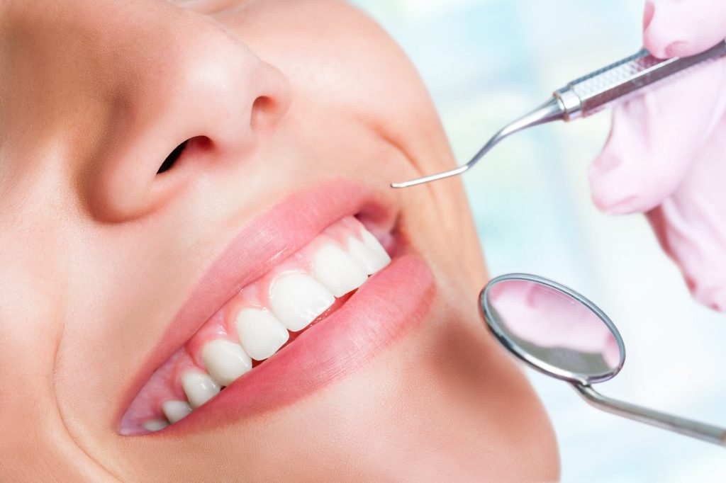 close up image of patient showing her teeth to the Best Dentist In Naples FL
